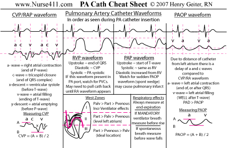 PA Catheter Cheat Sheet